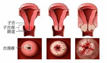 宫颈癌1b治疗方法