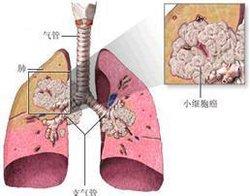 http://www.wd999.com/linai/zhuanyi/43524.html