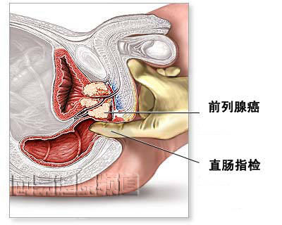 腺腺癌有什么症状