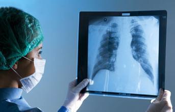 肺癌确诊后还需要检查吗