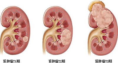 http://www.wd999.com/shenai/zhuanyi/47782.html