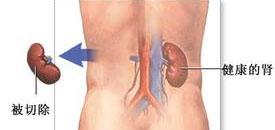 不同分期肾癌的治疗