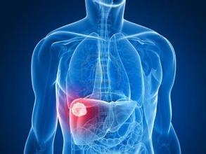 肝癌手术治疗好不好呢