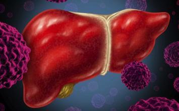 肝癌的癌前疾病