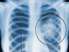 肺癌晚期发生骨转移