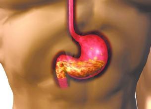 胃癌放化疗后辅助中医治疗
