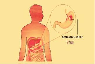 胃癌手术治疗的常识