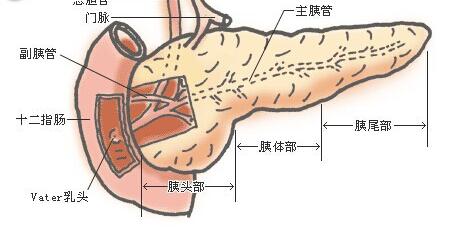 胰腺癌的治疗方法