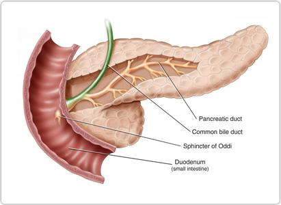 什么是胰腺癌