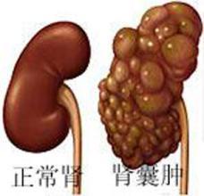 哪些疾病容易和肾癌混淆
