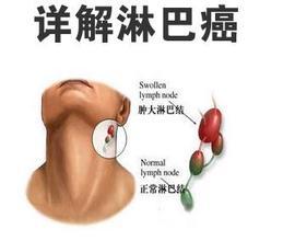 http://www.wd999.com/linbaai/linbaaifufa/48582.html
