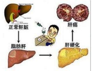 容易忽视的肝癌症状