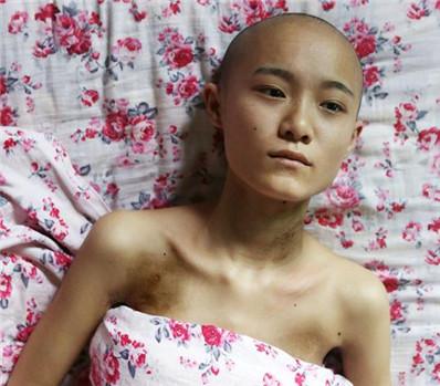 21岁女孩患恶性肿瘤 欲放弃治疗去旅行