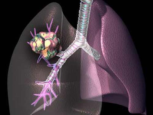 中医怎么治肺癌