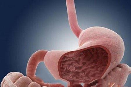 胃癌术后复发原因有哪些