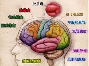脑胶质瘤术后复发