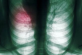 适当运动助肺癌患者增强抵抗力