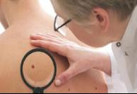 皮肤癌手术治疗后怎么恢复快