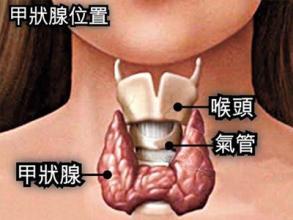 患有甲状腺癌如何治疗