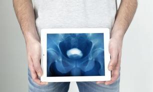 前列腺癌晚期有什么表现