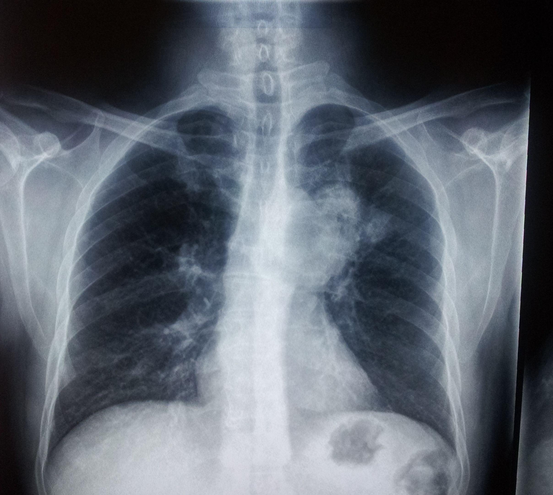 肺癌复发转移后的治疗方法