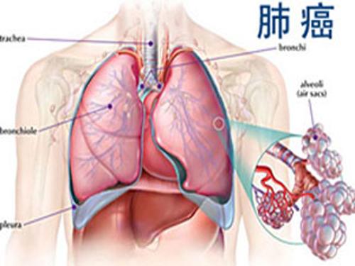 减少肺癌放疗的不良反应