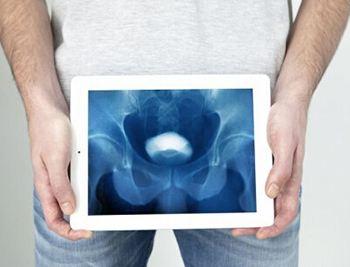 膀胱癌的症状有哪些