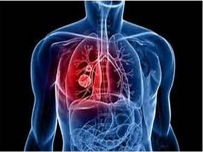 早期胃癌也要警惕并发症
