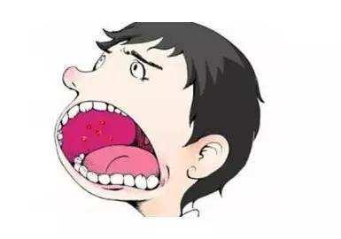 口腔癌会出现哪些症状