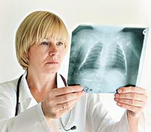 转移性肺癌怎么治