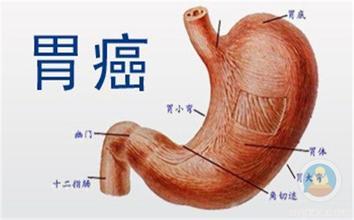 胃癌的主要病因是什么