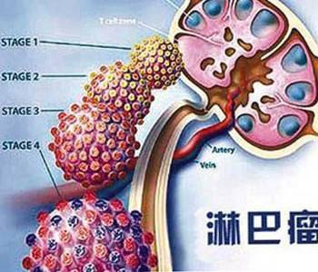 恶性淋巴瘤的分期