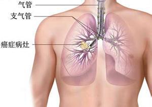 肺癌早期表现有哪些