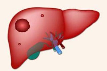 如何降低小肝癌复发情况