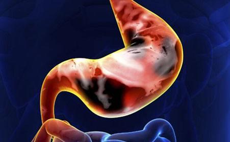 胃癌应该怎样进行治疗