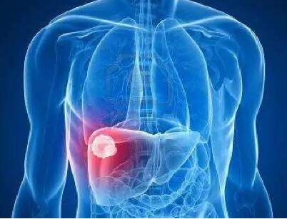 肝癌放疗会出现哪些危害