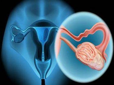 宫颈癌常规治疗方式