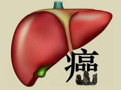 肝癌发病后应怎样治疗