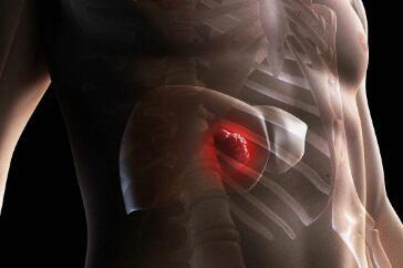 肝癌会出现哪些治疗误区