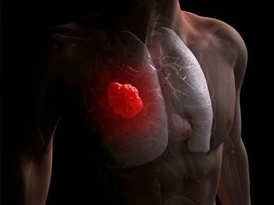 肺癌术后如何护理