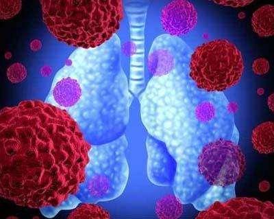 肺癌应该怎么治疗