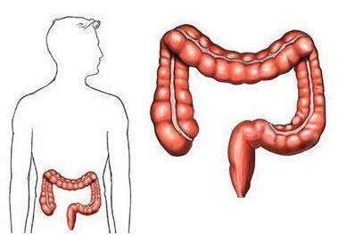 直肠癌病人术后怎么护理