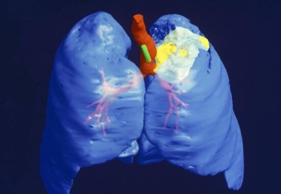 肺癌主要表现症状是哪些