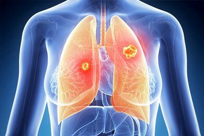 肺癌晚期的注意事项