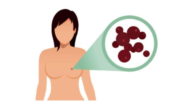 乳腺癌术后复发怎么办
