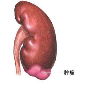肾癌复发的症状表现