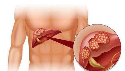 防止肝癌再次复发的方法