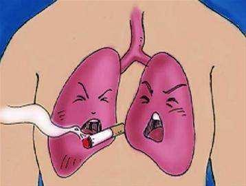 肺癌术后复发怎么治疗