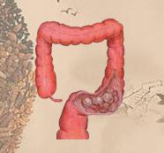 直肠癌中医诊治类型
