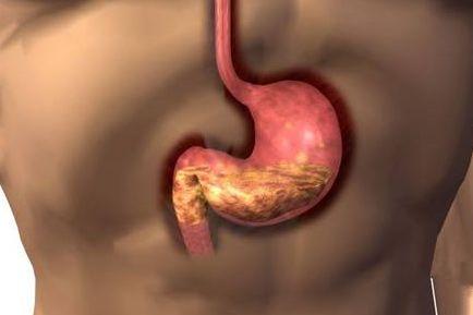 得胃癌应如何护理